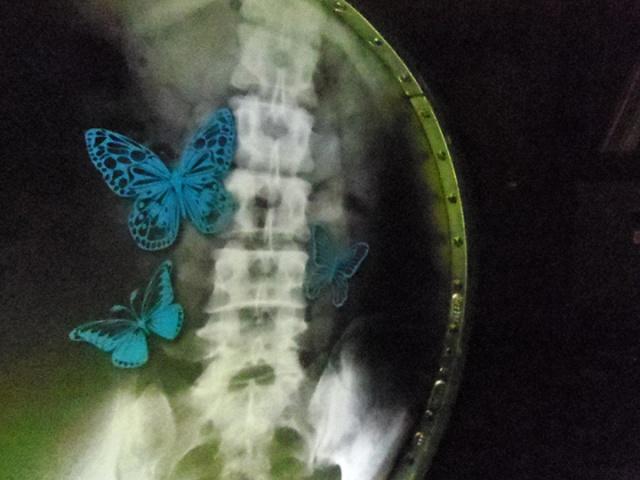 papillon dans l'estomac